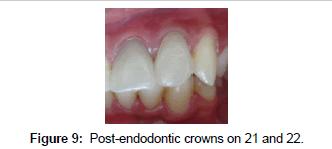 bioceramics-development-applications-endodontic-crowns