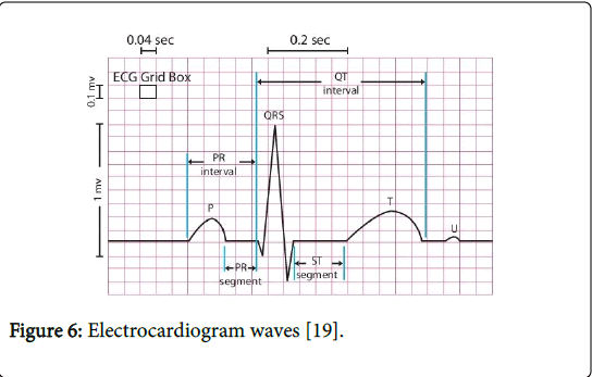 biological-medicalsciences-Electrocardiogram-waves