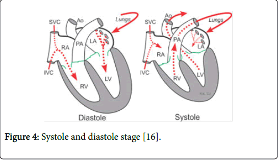 biological-medicalsciences-diastole-stage