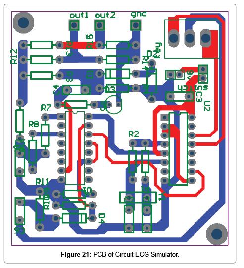 Design and Development of ECG Simulator and Microcontroller