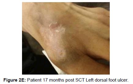 blood-lymph-dorsal-foot-ulcer