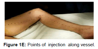 blood-lymph-injection-vessel