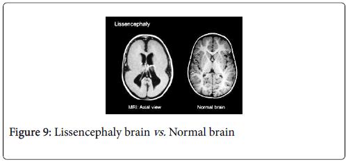 cancer-clinical-Tumour-Lissencephaly-brain