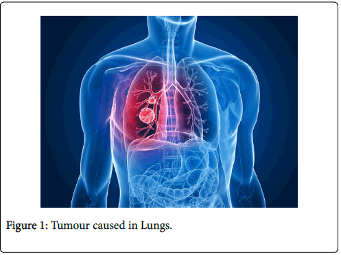 cancer-clinical-Tumour-Lungs