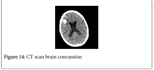 cancer-clinical-Tumour-brain-concussion