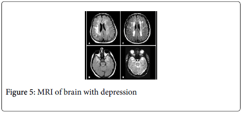 cancer-clinical-Tumour-brain-depression