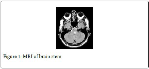 cancer-clinical-Tumour-brain-stem