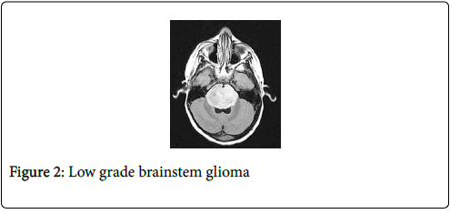 cancer-clinical-Tumour-brainstem-glioma