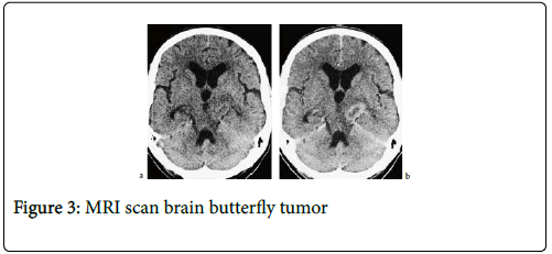 cancer-clinical-Tumour-butterfly-tumor