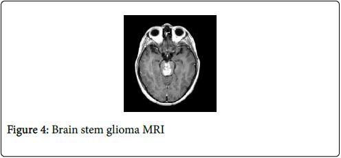 cancer-clinical-Tumour-glioma-MRI