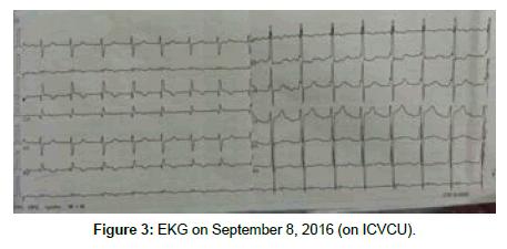 cardiovascular-diseases-EKG-September
