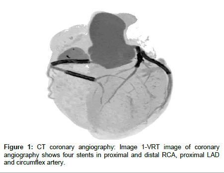 cardiovascular-diseases-coronary-angiography