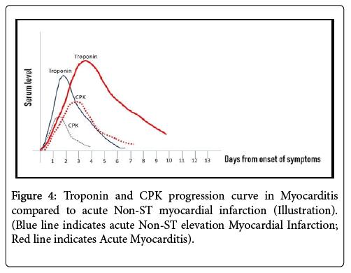 cardiovascular-diseases-diagnosis-myocardial