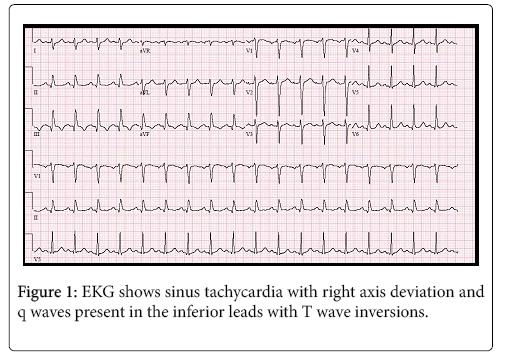 cardiovascular-diseases-diagnosis-tachycardia