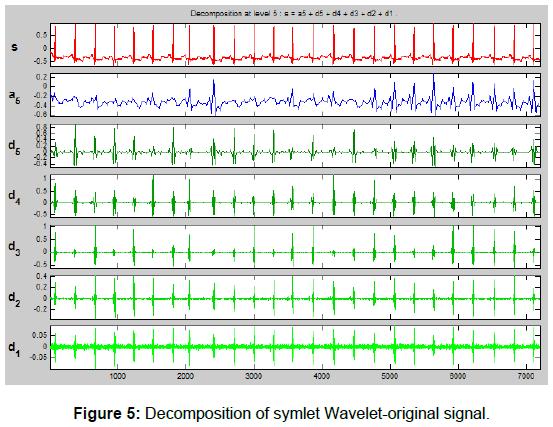 cardiovascular-pharmacology-Wavelet-original-signal