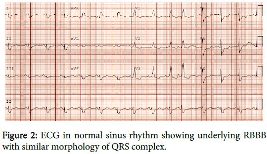 cardiovascular-pharmacology-normal-sinus-rhythm