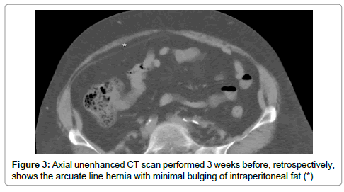 clinical-case-reports-Axial-unenhanced