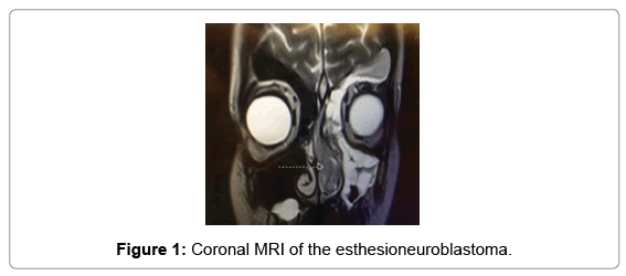 clinical-case-reports-Coronal-MRI