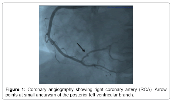 clinical-case-reports-Coronary-angiography