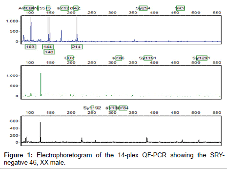 clinical-case-reports-Electrophoretogram