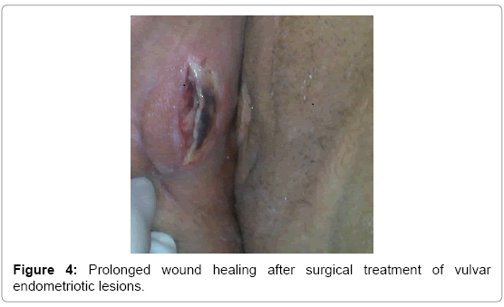 clinical-case-reports-Prolonged-wound