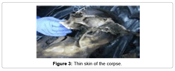 clinical-case-reports-Thin-skin
