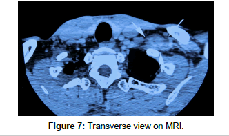 clinical-case-reports-Transverse-view