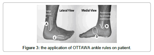 clinical-case-reports-ankle