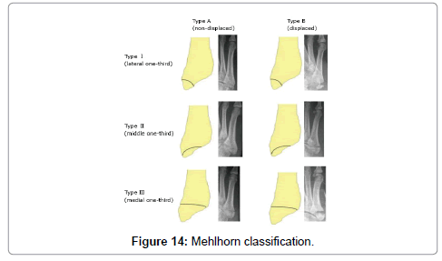 clinical-case-reports-mehlhorn