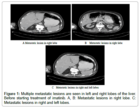 clinical-case-reports-metastatic