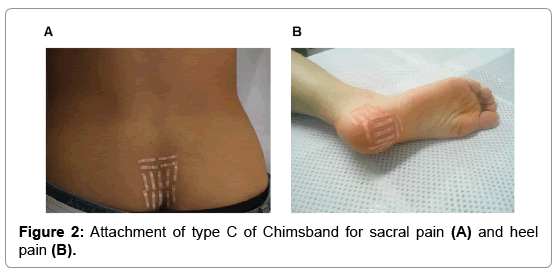 clinical-case-reports-sacral-pain