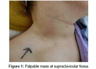 clinical-case-reports-supraclavicular-fossa