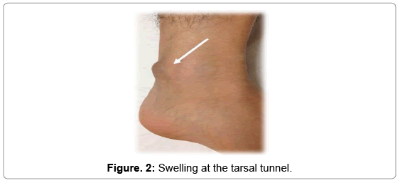 Angioleiomyomas Around The Tarsal Tunnel A Case Report And Review