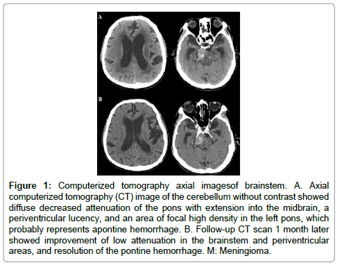 clinical-case-reports-tomography
