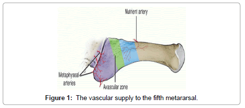 clinical-case-reports-vascular