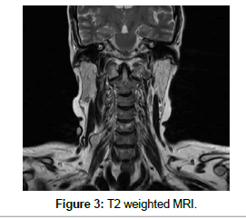 clinical-case-reports-weighted-MRI