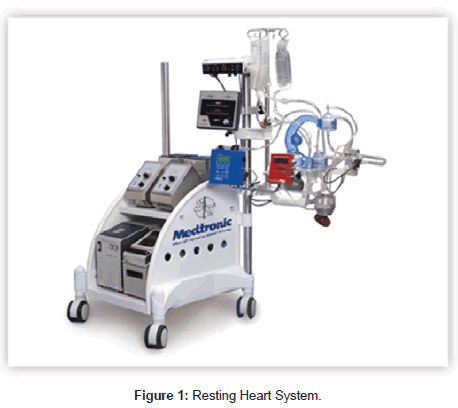 Advantages to Miniaturized Cardiopulmonary Bypass for Adult