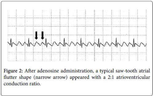 clinical-experimental-cardiology-conduction-ratio