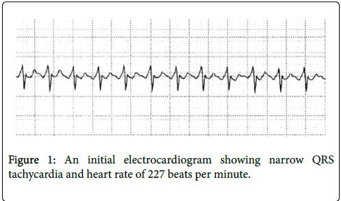 clinical-experimental-cardiology-heart-rate