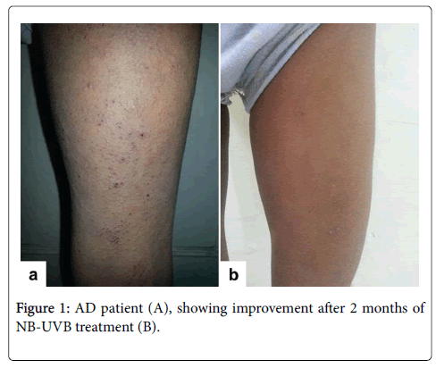 clinical-experimental-dermatology-AD-patient