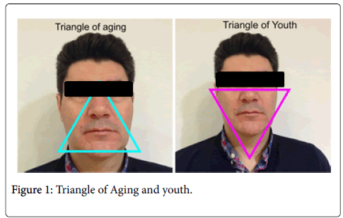 clinical-experimental-dermatology-Triangle-Aging
