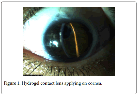 clinical-experimental-ophthalmology-Hydrogel-contact