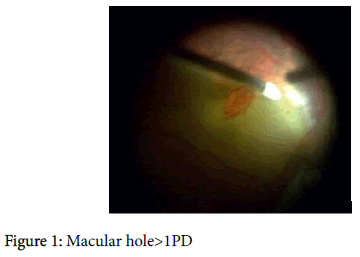 clinical-experimental-ophthalmology-Macular-hole