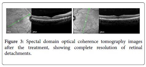 clinical-experimental-ophthalmology-Spectal-domain