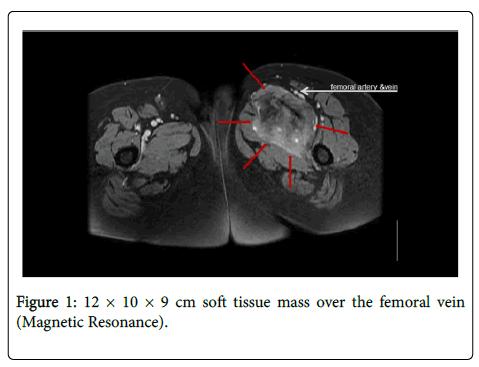 clinical-experimental-pathology-soft-tissue