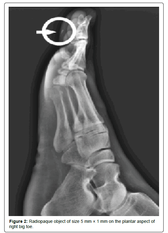 clinical-foot-ankle-Radiopaque