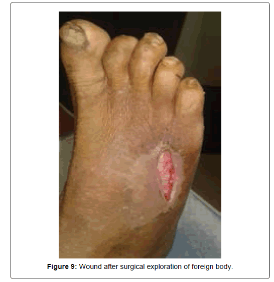 clinical-foot-ankle-Wound-surgical