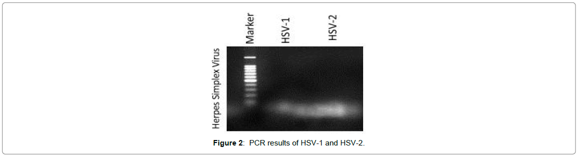 clinical-infectious-diseases-PCR-results