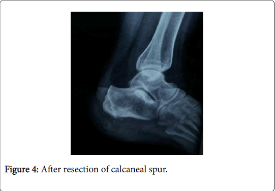clinical-research-foot-ankle-calcaneal-spur
