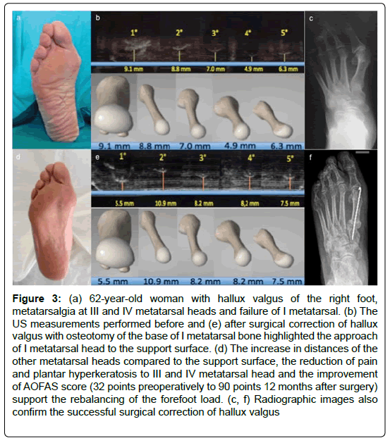 clinical-research-foot-ankle-metatarsalgia